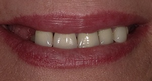 Dark colored teeth before