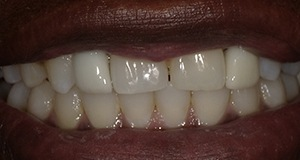 Tooth-colored crown on front tooth after