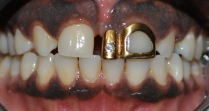 Dark colored crown on front tooth before