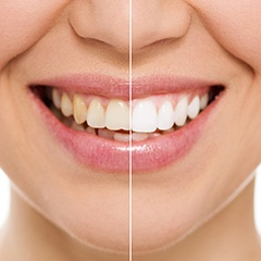 Before and after teeth whitening image