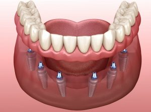 diagram of implant dentures