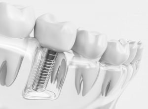 dental implant in Sunnyvale