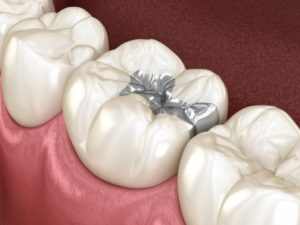 Diagram of amalgam fillings placed by Sunnyvale dentist