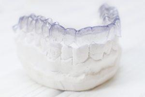 Dental model of Invisalign in Sunnyvale.